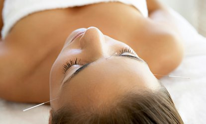 image for One-Hour Acupuncture Session at Natural Healing (72% Off)
