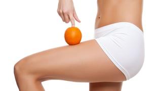 Zen Sans Bouger: Cure minceur anti peau d'orange de 5 ou 10 séances dès 175 € à l'institut Zen Sans Bouger