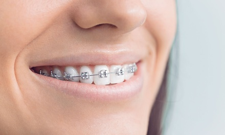 One or Two Arches of Metallic or Ceramic Braces at Ortho London (Up to 41% Off) (London)
