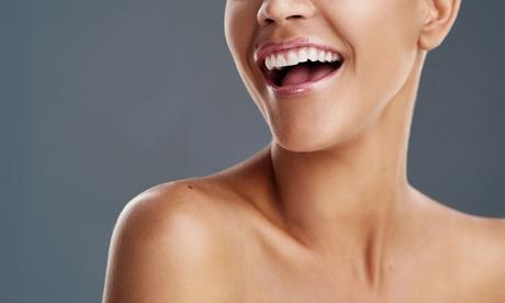 Sesión de limpieza bucal completa con opción a blanqueamiento led desde 9,95 € en Centro Médico Dental Dra Vázquez