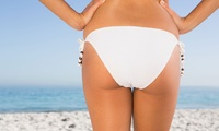Laser Lipolysis and Cavitation: Three or Six Sessions at Lirio Therapy (85% Off)