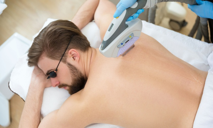 laser hair removal in Newmarket