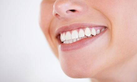 20-, 40-, or 60-Minute Teeth-Whitening Session at Whiter Smiles RVA (Up to 52% Off)
