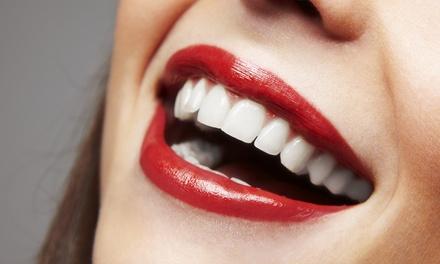 Limpieza bucal con 1 o 2 sesiones de blanqueamiento con luz led desde 49,90 € en 2 centros Integral Odonto