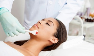 St. George Medical Spa: One, Three, or Five Microdermabrasion Treatments at St. George Medical Spa (Up to 67% Off)