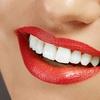 Limpieza profunda de encías e higiene bucal 99 €