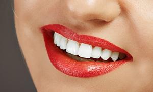 Alcaladent: Higiene bucal completa por 19 € y con limpieza profunda de encías por 99 €