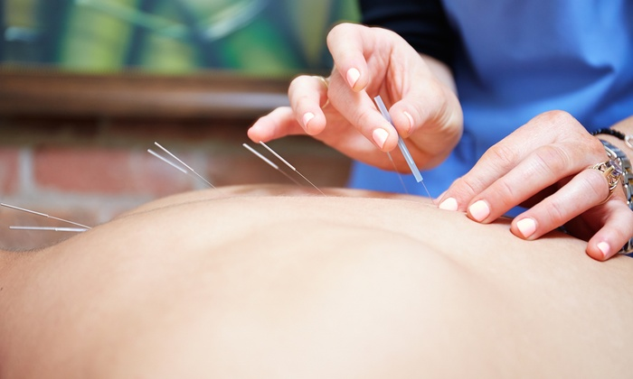 What Does an Acupuncturist in Castle Rock Do?