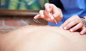 Up to 79% Off Acupuncture at BeAti Acupuncture Wellness Clinic at BeAti Acupuncture Wellness Clinic, plus 6.0% Cash Back from Ebates.