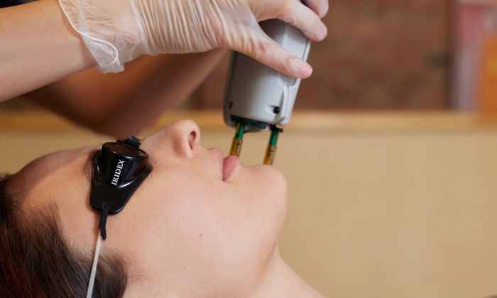 Oklahoma SkinCare - Northwest Oklahoma City: $995 for Cynosure SmartSkin CO2 Laser Skin Rejuvenation Facial at Oklahoma SkinCare ($2,795 Value)