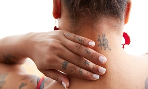 """Empire Beauty: Three or Six Sessions of Laser Tattoo Removal on 2"""" x 2"""" Area at Empire Beauty (Up to 34% Off)"""