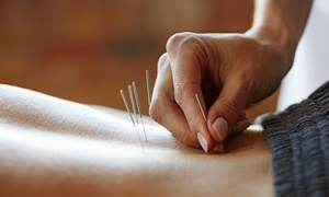 Wu Chiropractic Care, Inc.: One or Three Acupuncture, Cupping, and Physiotherapy Sessions at Wu Chiropractic Care, Inc. (Up to 71% Off)
