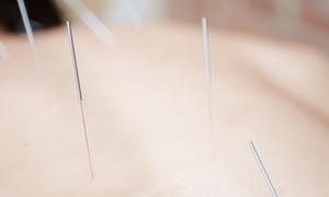 Naturheilpraxis Sonja Müller: 1x, 2x oder 4x Akupunktur bei Heilpraktikerin Sonja Müller (bis zu 66% sparen*)