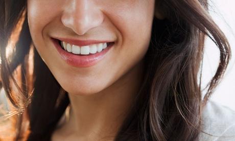 1, 2 o 4 limpiezas bucodentales completas desde 9,90 € en dos centros de Clínica dental Landete