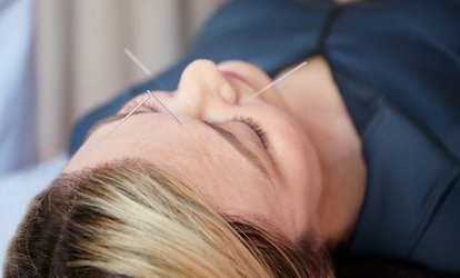 image for One or Three Acupuncture Sessions at Acupuncture Together (Up to 70% Off)