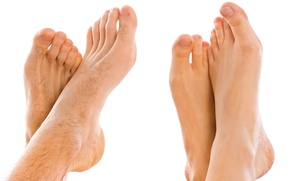 Skin Deep Laser Services: $99 for Laser Nail-Fungus Removal for 10 Toes at Skin Deep Laser Services ($400 Value)