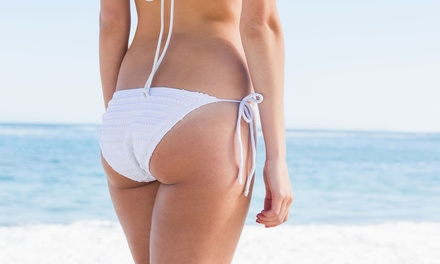3 Vacuum Butt Lifts with Optional Radio Frequency or 5 Vacuum Butt Lifts at XlashbyYane (Up to 62% Off)