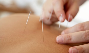 Herbs and Acupunture: 15-Minute Cupping Session, 30-Minute Acupuncture or Both at Herbs and Acupunture (Up to 52% Off)