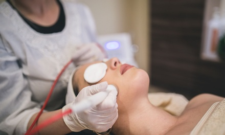 Microdermabrasion at Privé Cosmetic (58% Off)