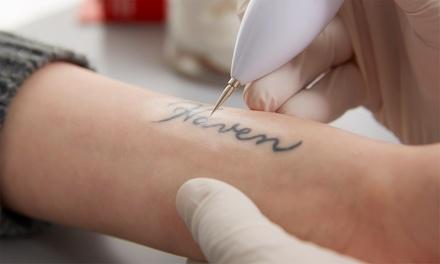 2 o 4 sesiones de eliminación de tatuajes de tinta negra con láser de hasta 225 cm² desde 39€ en Centro Médico Amg Salud