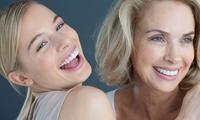Kosmetisches Bleaching mit Zahnreinigung und optional Nachbehandlung im Zahnkosmetik-Studio Angels (bis zu 61% sparen*)