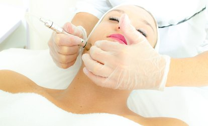 Microdermabrasion: One or Three Sessions at Elexa Elegance Beauty (Up to 71% Off)