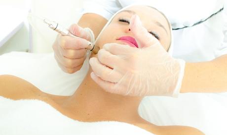 1x oder 2x 60 Min. Mikrodermabrasion bei Ayza Kosmetik (bis zu 54% sparen*)
