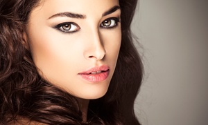 AmeriLaser Center: $142 for 20 Units of Botox at AmeriLaser Center ($260 Value)