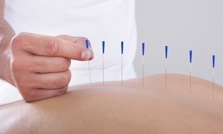 Acupuncture Session with Optional Cupping and Choice of Massage at BEN Health and Beauty Centre (Up to 71% Off)