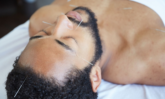 Elements Total Health Center - South Pasadena: 60-Minute Acupuncture Treatment with Optional 60-Minute Massage or Chiropractic Treatment at Elements Total Health Center (58% Off)