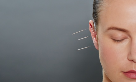 Three or Six Acupuncture Sessions with Auricular Ear Therapy at Qare Wellness Acupuncture (Up to 75% Off)