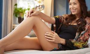 The Laser Lounge Spa: 30- or 60-Minute Sclerotherapy Spider-Vein-Removal Session at The Laser Lounge Spa (Up to 51% Off)