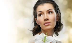 Cherry Medical Aesthetics: Injection of Up to 10 or 20 Units of Botox at Cherry Medical Aesthetics (Up to 57% Off)