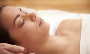 Insight Wellness: Acupuncture Packages with 30-Minute Massages at Insight Wellness (Up to 68% Off). Three Options Available.