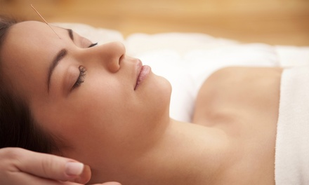One or Two Acupuncture Treatments with a Consultation at LifeTree Clinic (Up to 75% Off)