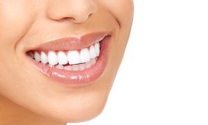 Limpieza bucal con fluorización y revisión por 12,90 €