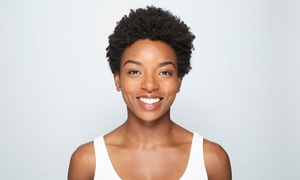 Hamilton Dental Centre: Short Term Cosmetic Braces for Top or Bottom Arch or Both at Hamilton Dental Centre (Up to 75% Off)