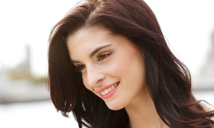 AmeriLaser Center: One or Two Non-invasive Lifts for the Face, Neck, or Chin at AmeriLaser Center (Up to 84% Off)