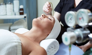 Bellissimo You: One or Three Microdermabrasion Treatments and Chemical Peels at Bellissimo You (Up to 79% Off)