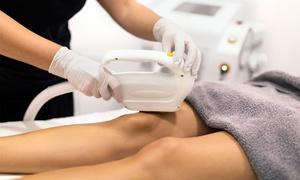 Coco Beauty Clinic: Depilacja laserowa nowoczesnym laserem: 3 zabiegi za 299,99 zł i więcej opcji w Coco Beauty Clinic