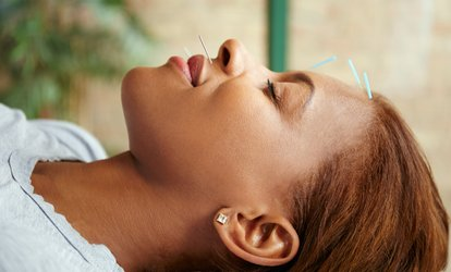 One-Hour Cosmetic Acupuncture Facial at Physiotherapy Sheffield Sports Injuries Clinic (62% Off)