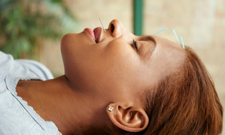 Cosmetic Acupuncture Facial