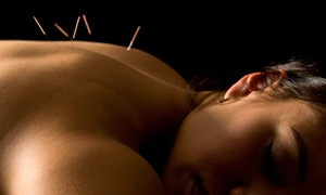 Eden Clinic: Massage, Acupuncture, and Chiropractic Care Packages at Eden Clinic (Up to 84% Off). Four Options Available.