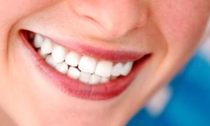 1 o 2 blanqueamientos dentales led con limpieza bucal con pulido desde 59,95 €