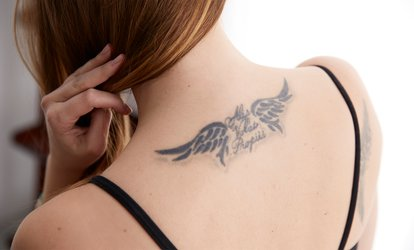 image for Up to Six Laser Tattoo Removal Sessions on Small or Medium Area at SK:N Laser And Beauty