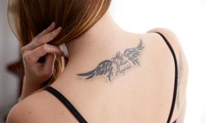 Centro Stetika: 3, 6, 9 o 12 sesiones de tratamiento láser para eliminar un tatuaje desde 79,95 € en Centro Stetika