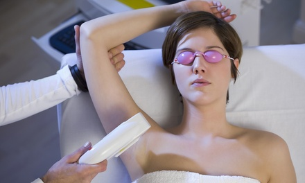 Four Laser Hair Removal Sessions: Two $99, Three $129 or Four Areas $139 at Healthworths Up to $1,280 Value