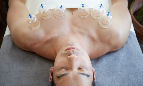 One, Two, or Three Cupping Sessions at Seva Acupuncture (Up to 56% Off) 3509ca72-d4cf-4ac9-b88b-4efbee845536