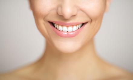 Limpieza bucal con opción a hasta 4 empastes o blanqueamiento led desde 12,95 € en Clínica Dental Puerta Jerez