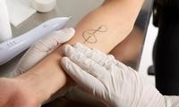 Wertgutschein über 100 € oder 200 € anrechenbar auf eine Tattoo-Entfernung bei Tattooentfernung Aydi